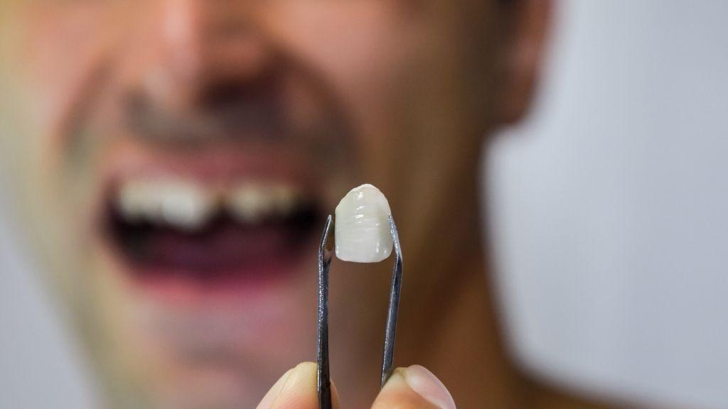 broken teeth calgary downtown