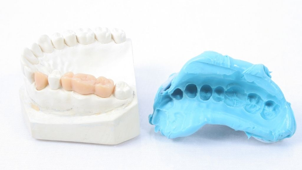 dental crowns bridges calgary downtown
